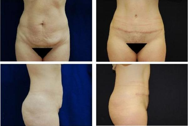 Tummy_Tuck_Case_0698