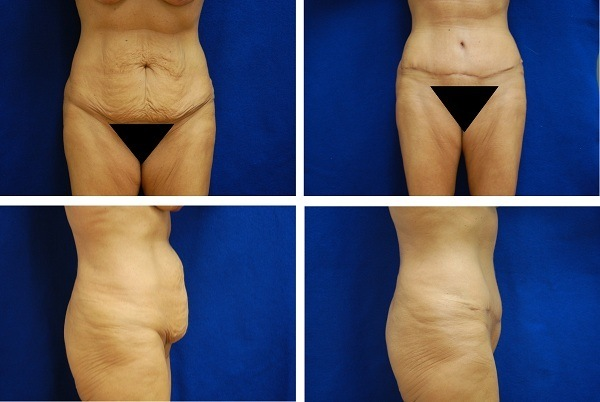 Tummy_Tuck_Case_1076