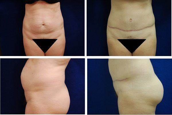 Tummy_Tuck_Case_12521