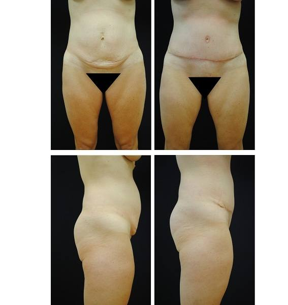 Tummy_Tuck_Case_15331