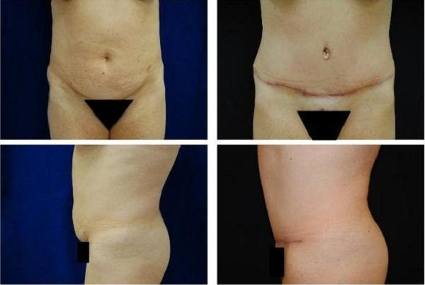 Tummy_Tuck_Case_304