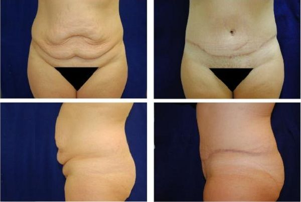 Tummy_Tuck_Case_310