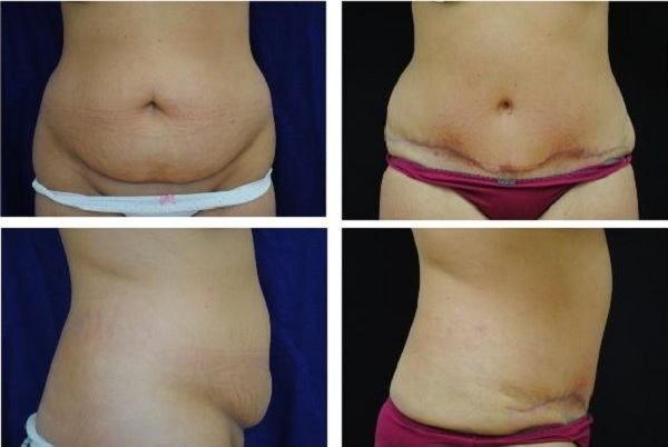 Tummy_Tuck_Case_320