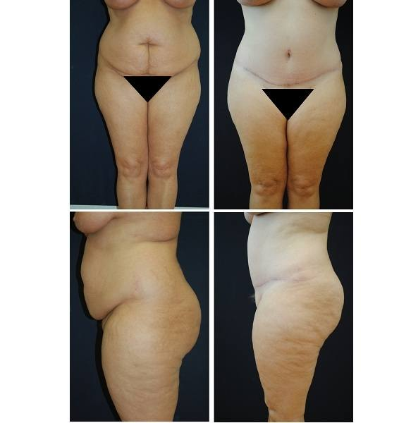 Tummy_Tuck_Case_33011