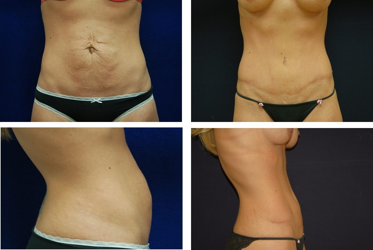 Tummy_Tuck_Case_57711