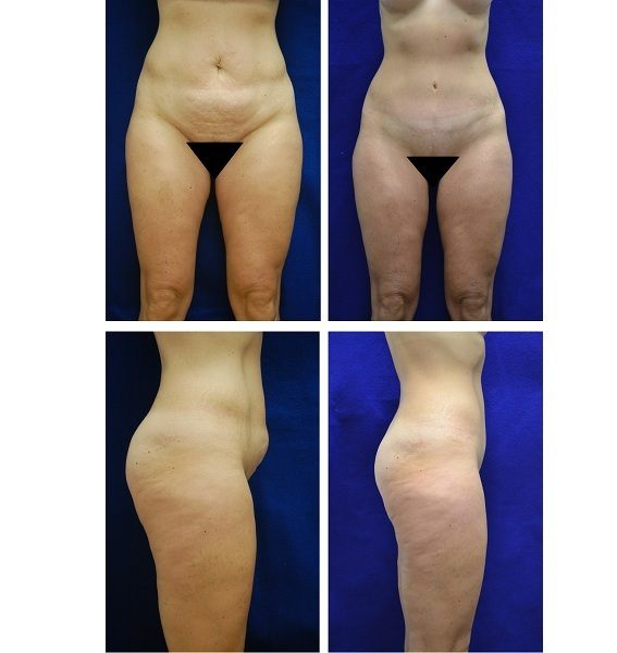 Tummy_Tuck_Case_5941