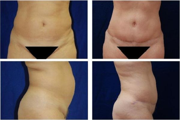 Tummy_Tuck_Case_620