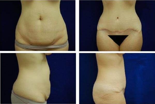 Tummy_Tuck_Case_623