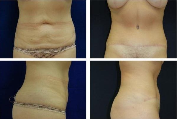 Tummy_Tuck_Case_630