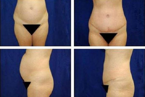 Tummy_Tuck_Case_709