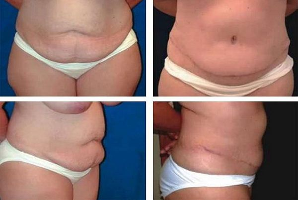Tummy_Tuck_Case_739