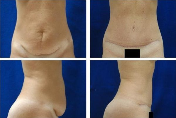 Tummy_Tuck_Case_779