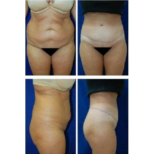 Tummy_Tuck_Case_780