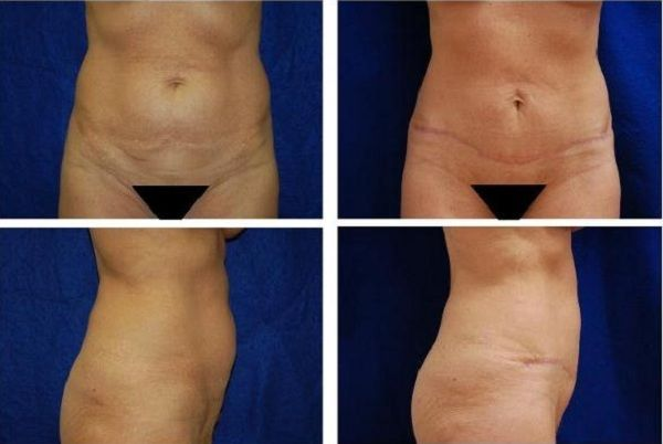 Tummy_Tuck_Case_782