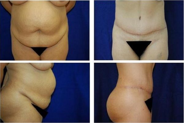 Tummy_Tuck_Case_784