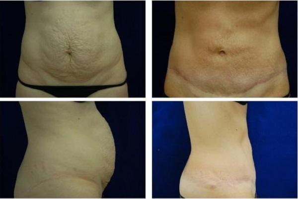 Tummy_Tuck_Case_787