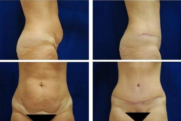 Tummy_Tuck_Case_790