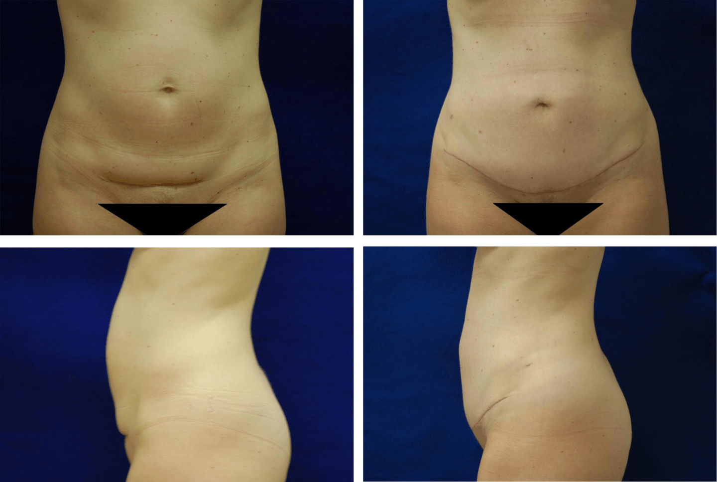 Tummy_Tuck_Case_8308