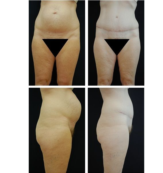 Tummy_Tuck_Case_8889