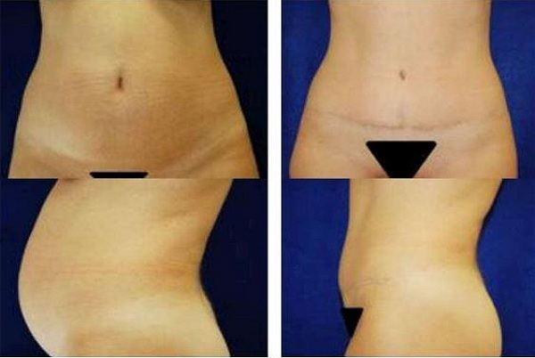Tummy_Tuck_Case_904