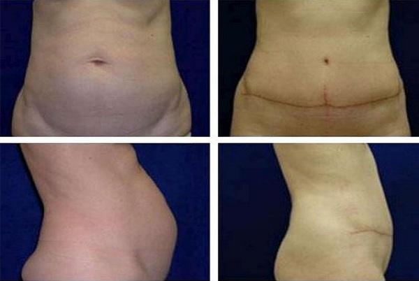 Tummy_Tuck_Case_906