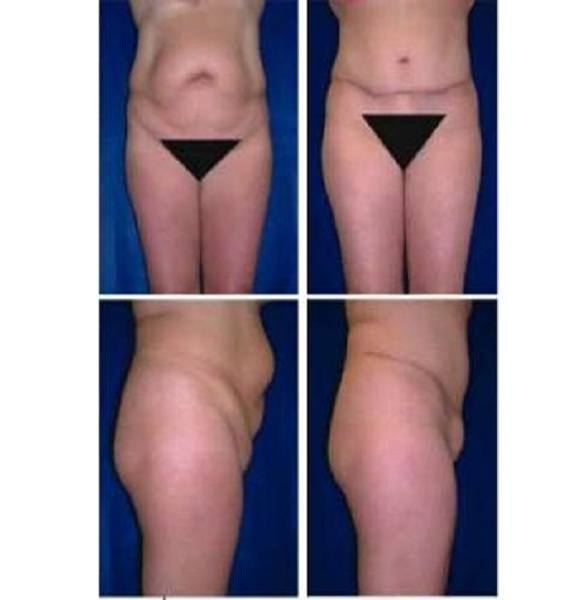 Tummy_Tuck_Case_911