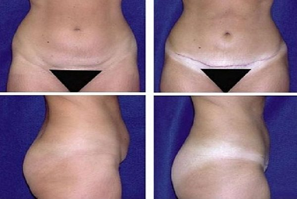 Tummy_Tuck_Case_915