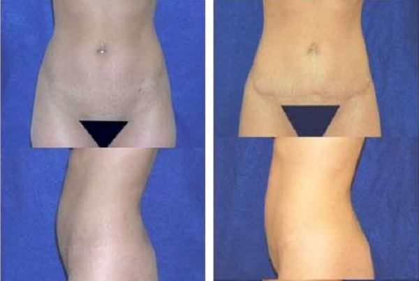 Tummy_Tuck_Case_920