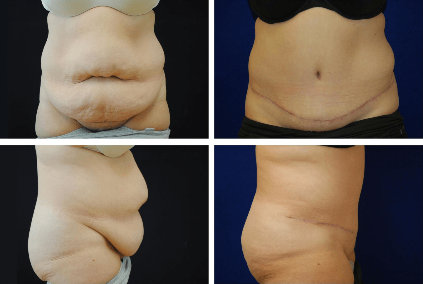 Tummy_Tuck_Case_92103