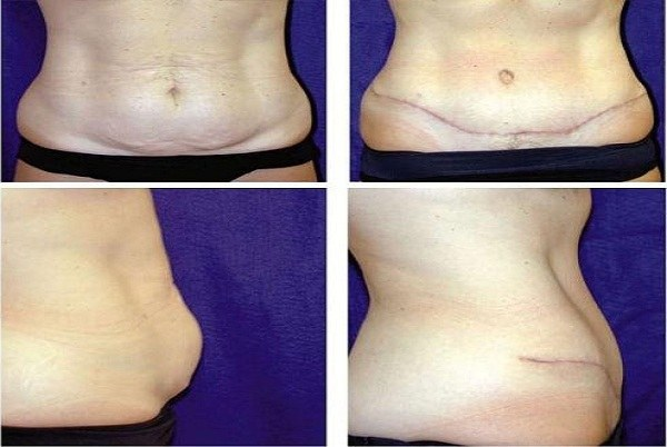 Tummy_Tuck_Case_926