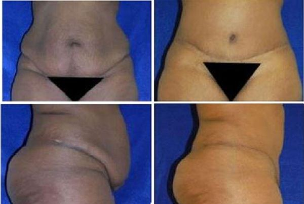 Tummy_Tuck_Case_928