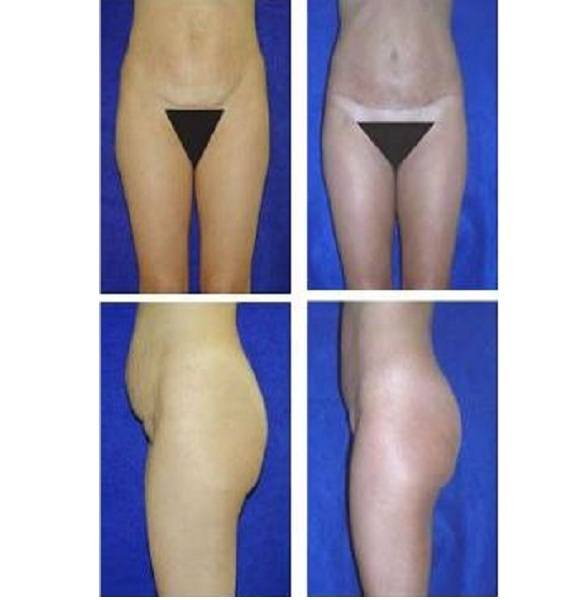 Tummy_Tuck_Case_931