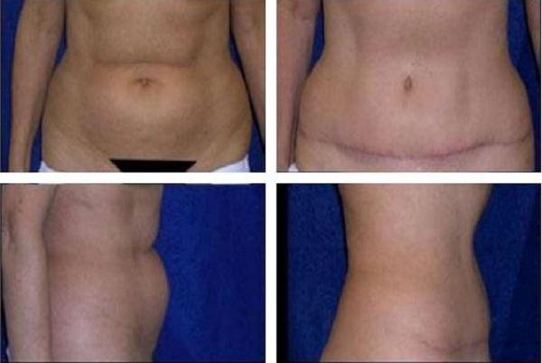 Tummy_Tuck_Case_934