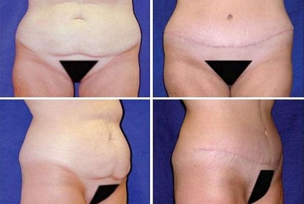 Tummy_Tuck_Case_940