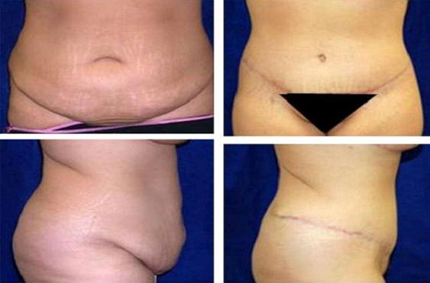 Tummy_Tuck_Case_959