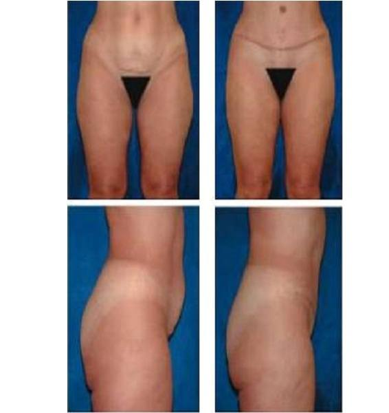Tummy_Tuck_Case_960