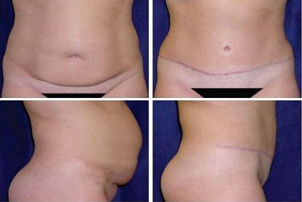 Tummy_Tuck_Case_963