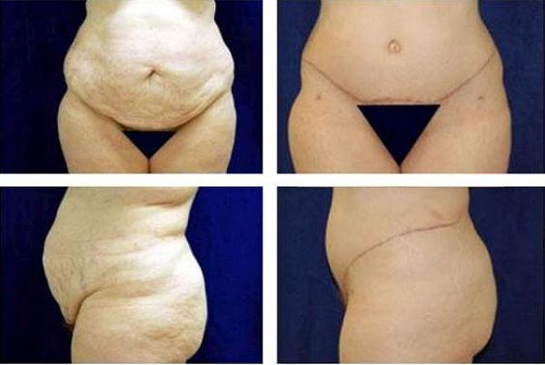 Tummy_Tuck_Case_964