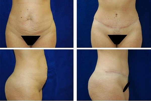 Tummy_Tuck_Case_973