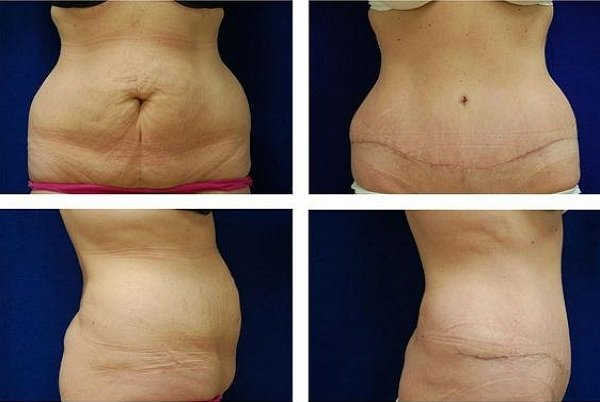 Tummy_Tuck_Case_975