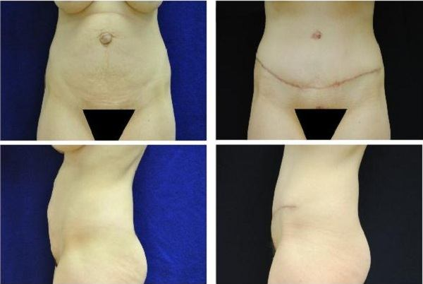 Tummy_Tuck_Case_980