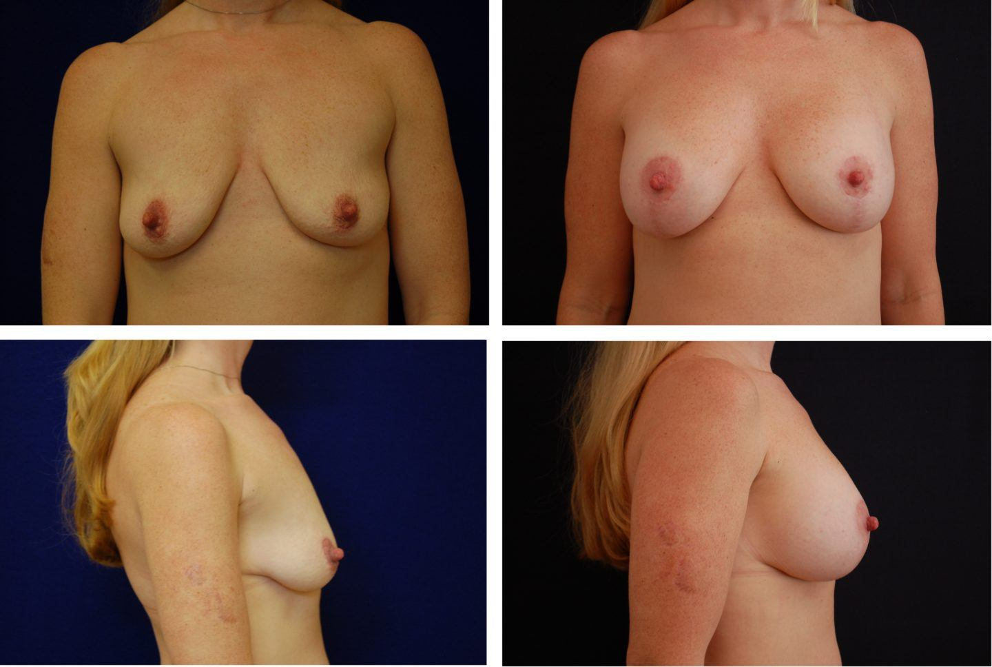 Breast Lift and Augmentation Case 97102