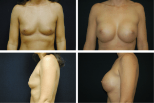 Breast Augmentation Case 99110
