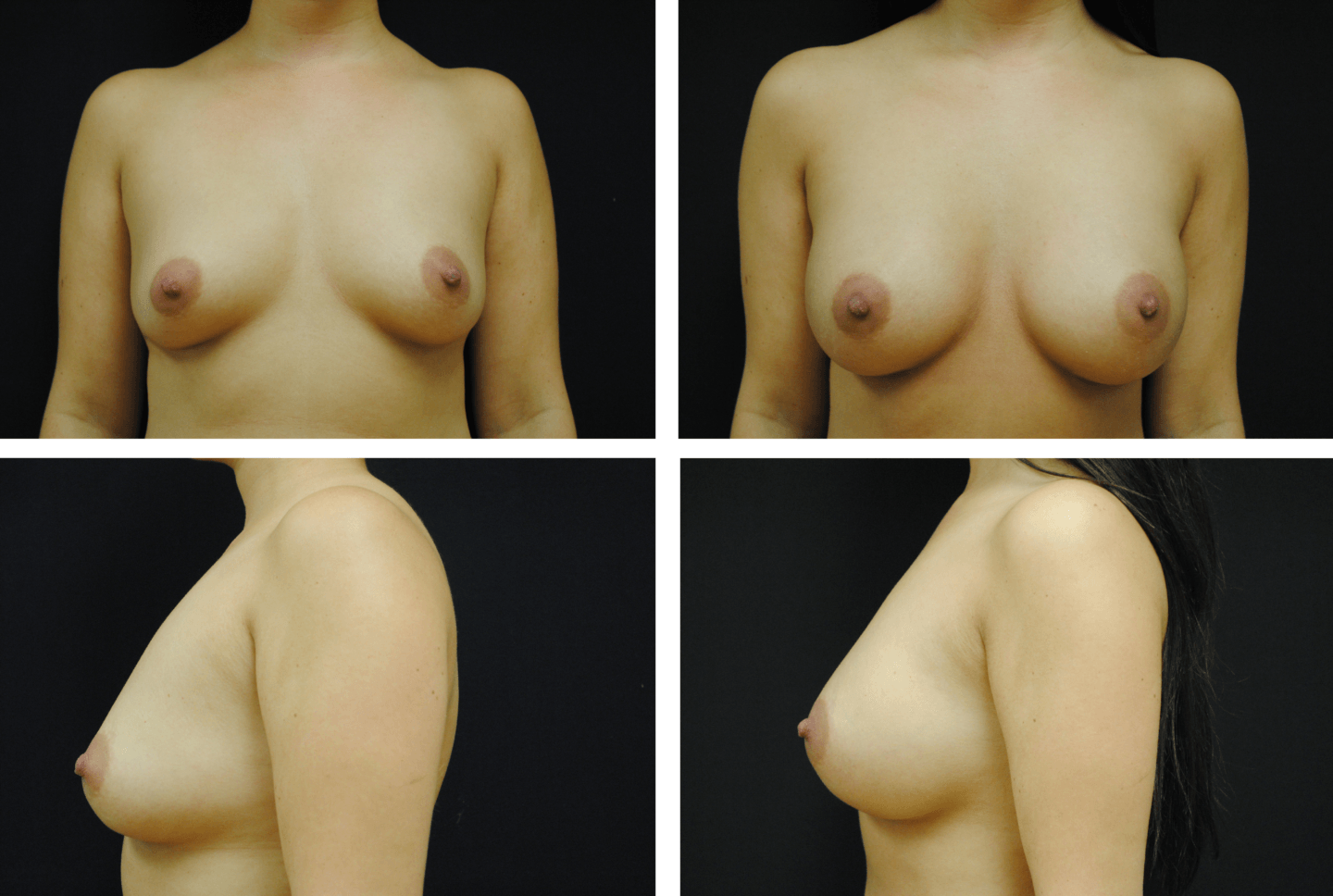 Breast Augmentation Case 99111