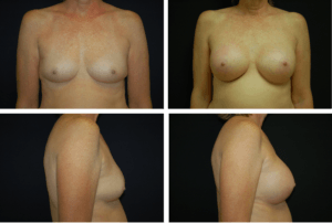Breast Augmentation Case 99112