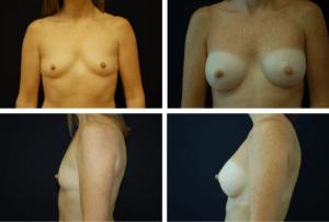 Breast Augmentation Case 99113