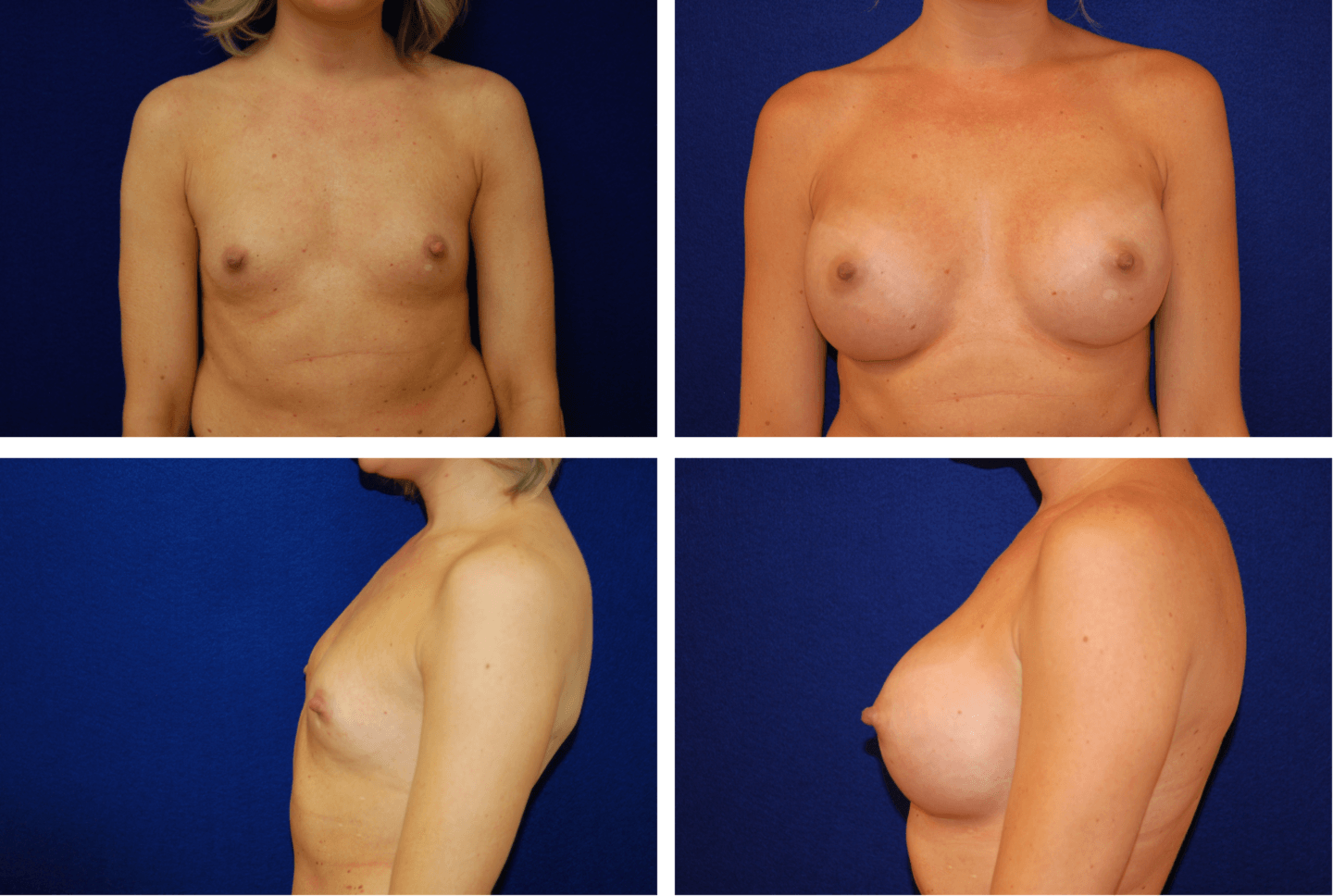 Breast Augmentation Case 99114 (2)
