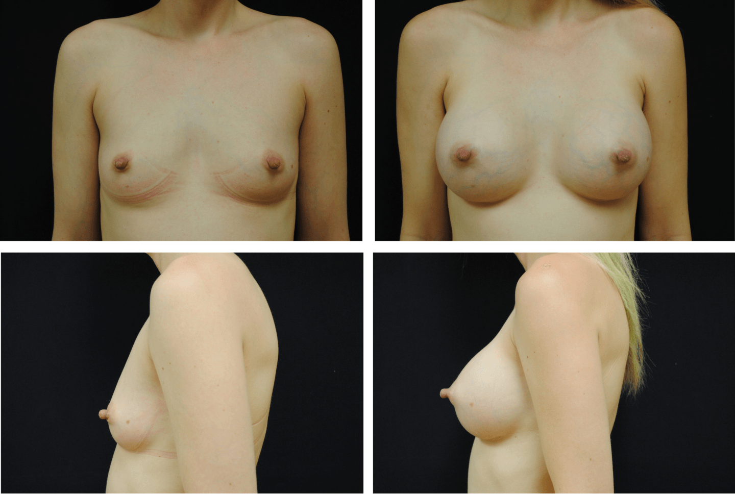 Breast Augmentation Silicone Case 99115