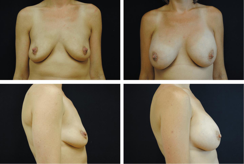 Breast Augmentation Silicone Case 99116