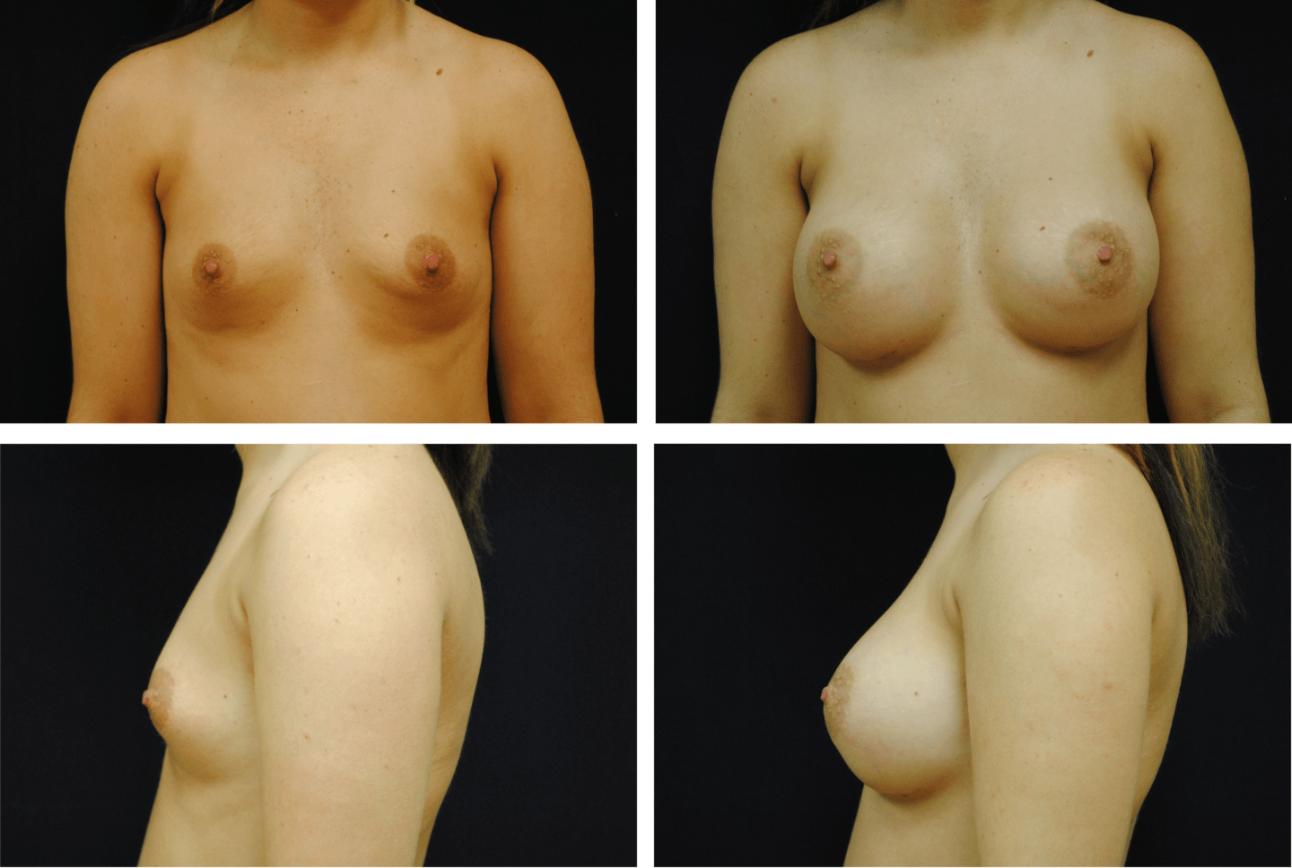 Breast Augmentation Silicone Case 99117